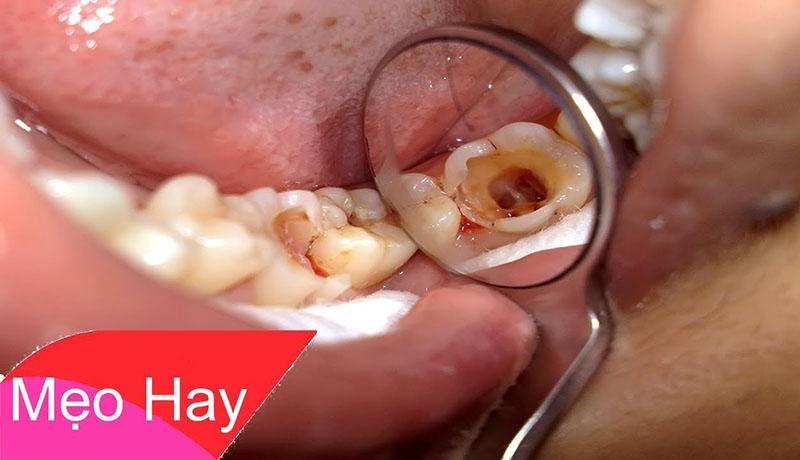 Bài thuốc chữa đau nhức răng!