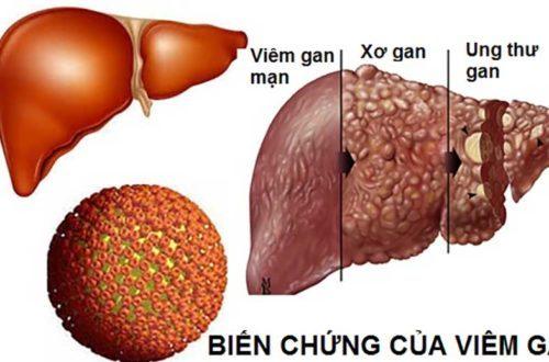 Nguyên nhân bị viêm gan B!