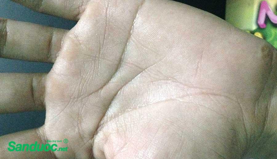 Review về đi mổ hạch giao cảm chữa bệnh ra mồ hôi chân tay!