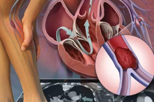 Điều trị viêm tắc mạch chi dưới như thế nào bạn biết chưa?