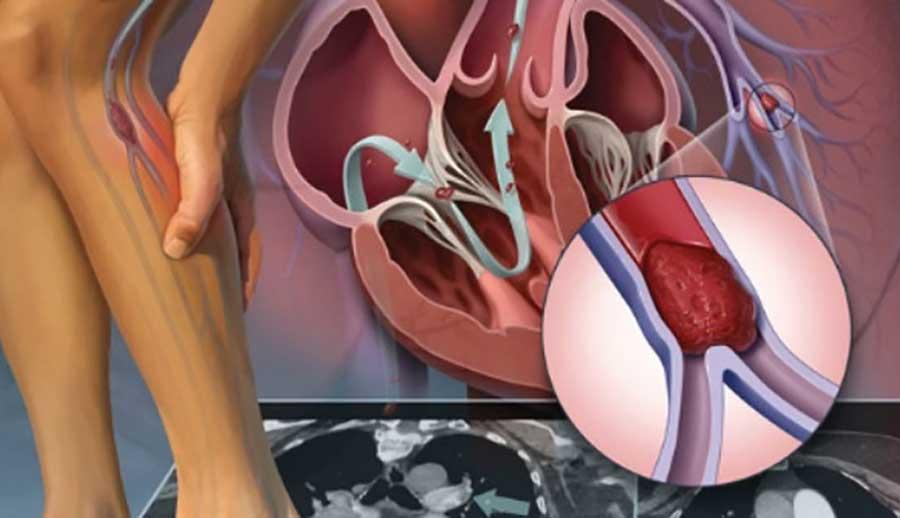 điều trị viêm tắc mạch chi