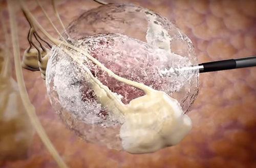 Điều trị ung thư vú bằng đóng băng khối u!