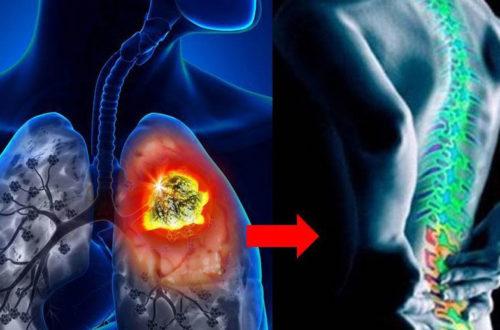 Ung thư phổi (phế nham)
