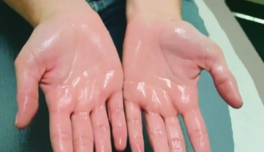 Rất nhiều trường hợp mồ hôi tay chân nhiều như tắm!